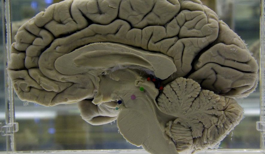 This Tuesday, Oct. 7, 2003, file photo shows a section of a preserved human brain on display at the Museum of Neuroanatomy at the University at Buffalo, in Buffalo, N.Y. A study released on Tuesday, April 10, 2018 offers more evidence of a link between traumatic brain injuries and dementia later in life, with repeated injuries and severe ones posing the greatest danger. (AP Photo/David Duprey) ** FILE **