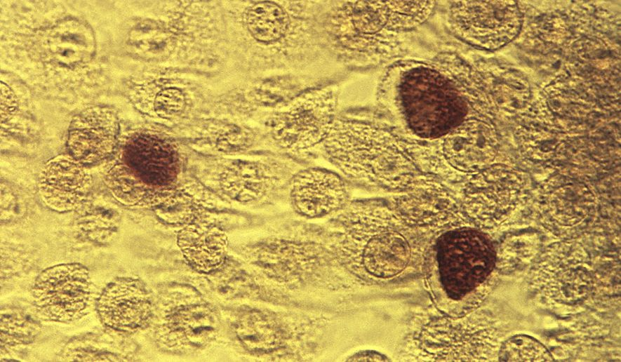 This 1975 file microscope image made available by the the Centers for Disease Control and Prevention shows chlamydia trachomatis bacteria magnified 200 times. (Dr. E. Arum, Dr. N. Jacobs/CDC via AP, File)