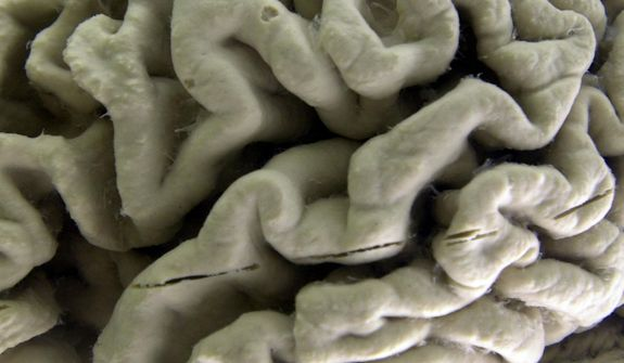 This Oct. 7, 2003, photo shows a section of a human brain with Alzheimer's disease on display at the Museum of Neuroanatomy at the University at Buffalo, in Buffalo, N.Y. (Associated Press) **FILE**