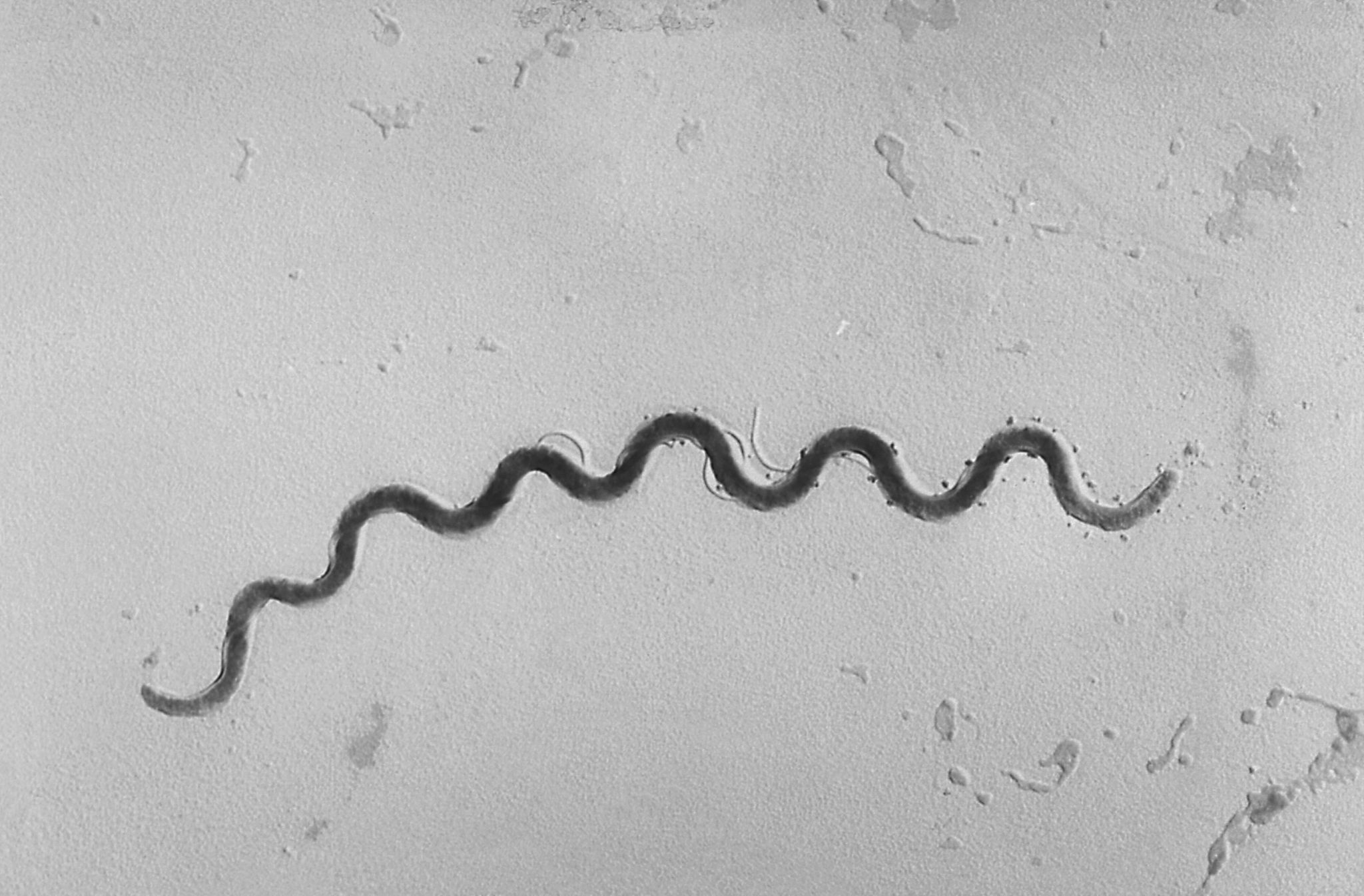 Syphilis cases in newborns more than doubled in 5 years, CDC says