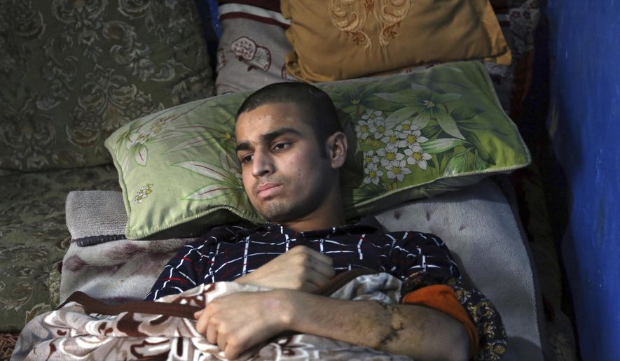 Nawid, a 21-year-old student who lost his brother and who was himself wounded in a deadly Taliban suicide attack on the Afghan capital's Green Village neighborhood  earlier this month, lies in bed at home during an interview with The Associated Press, in Kabul, Afghanistan, Tuesday, Jan. 29, 2019. Kabul residents are wary of peace talks with the Taliban, even as Afghan officials express hope that negotiations could lead to lasting peace in their war-ravaged country. (AP Photo/Rahmat Gul)