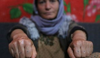 In this Thursday, Feb. 28, 2019, file photo, Baseh Hammo, a Yazidi woman who escaped enslavement by Islamic State group militants, shows the injuries to her hands that was carried out by an Albanian who forced her to put her hands on hot asphalt, then stomped on them with his boots, at a relatives's tent in a camp for displaced people outside Dahuk, Iraq. Yazidi women enslaved by the Islamic State group who escaped captivity say there could be hundreds of other women still missing, women who may never return home. (AP Photo/Khalid Mohammed)