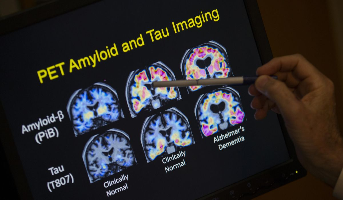 First-of-its-kind experimental Alzheimer's illness vaccine passes human security trials
