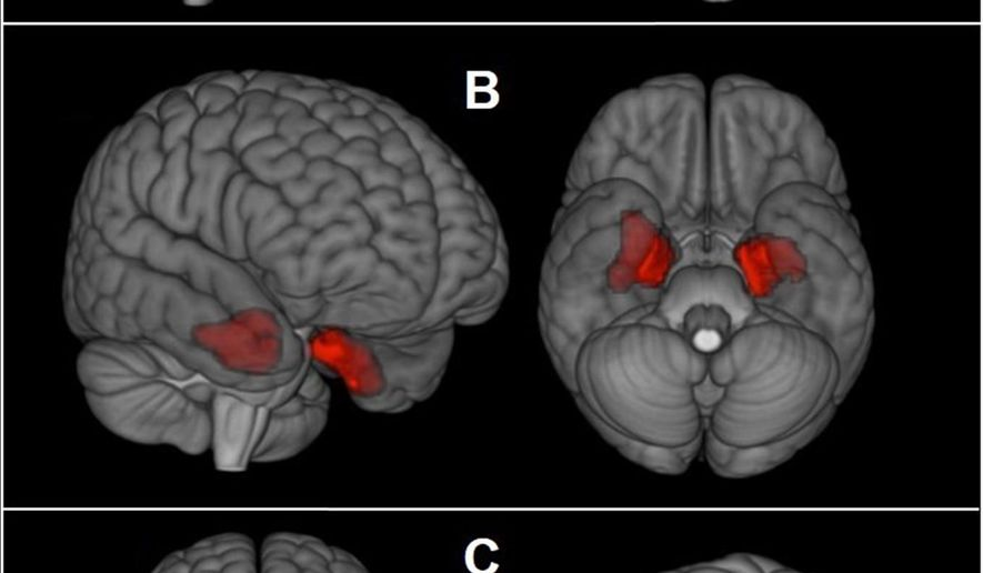 This image provided by The New England Journal of Medicine in April 2019 shows an illustration based on brain scans from former NFL players. As a group, they were found to have higher levels of an abnormal protein than a comparison group of healthy men, indicated by red patches. The protein is a hallmark of a degenerative brain disease that's been linked to repeated head blows. (The New England Journal of Medicine via AP)