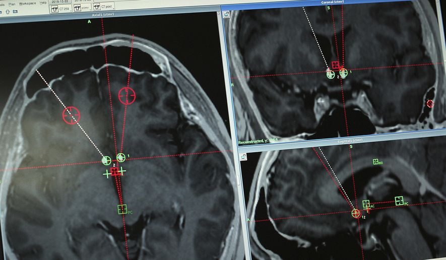 This Monday, Oct. 29, 2018 file photo shows a brain scan of a methamphetamine addict with the path of electrodes that doctors at Ruijin Hospital in Shanghai, China implanted to stimulate an area of the brain associated with addiction. (AP Photo/Erika Kinetz) **FILE**