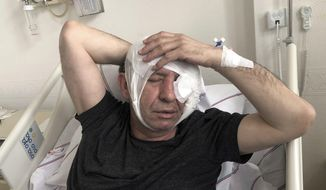 Yavuz Selim Demirag, a Turkish journalist critical of President Recep Tayyip Erdogan's government and its nationalist allies, rests in a hospital bed in Ankara, Turkey, Saturday, May 11, 2019. Yenicag newspaper says Saturday columnist Demirag was beaten by a group of about five or six people with baseball bats outside his home after appearing on a TV show late Friday.(AP Photo/Burhan Ozbilici)