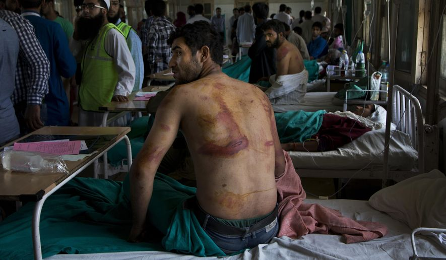 FILE - In this Aug. 18, 2016 file photo, Sameer Ahmed, a Kashmiri man allegedly beaten up by Indian soldiers at Khrew village, recovers at a local hospital in Srinagar, Indian controlled Kashmir. A prominent rights group in Indian-controlled Kashmir is advocating United Nations to establish a commission of inquiry to probe endemic use of torture by government forces who have faced decades long anti-India uprising in the disputed region. (AP Photo/Dar Yasin, File)