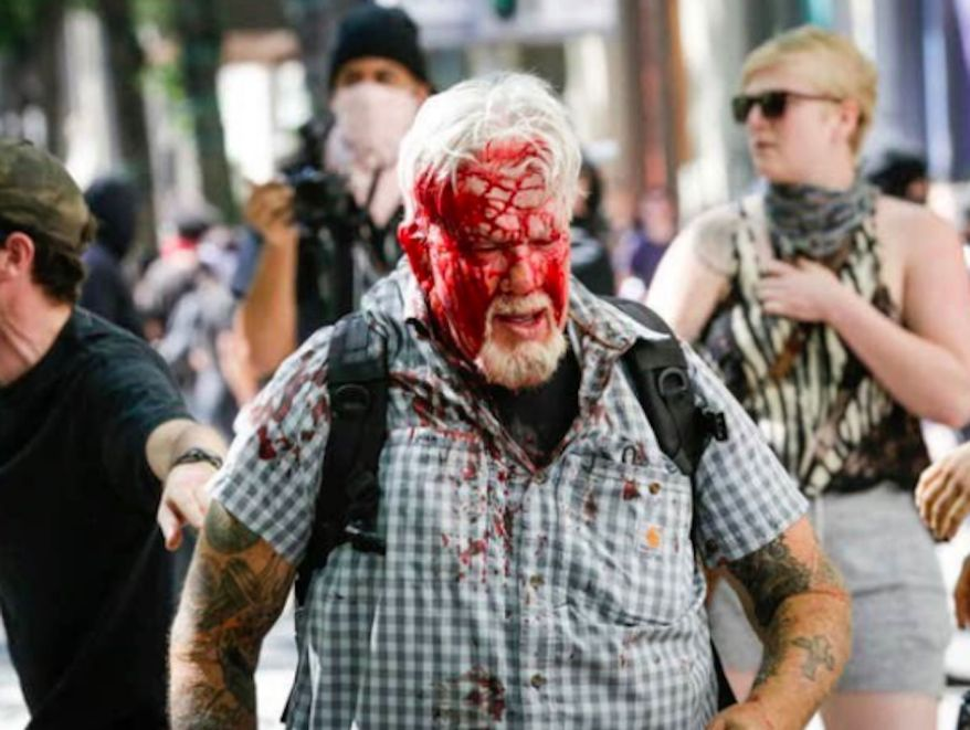 Two Oregon men — John Blum (shown here) and Adam Kelly — were mobbed and pummeled by black-masked protesters in a horrific attack in Portland that left Mr. Blum bleeding profusely from wounds to his face and skull, as shown in video shared on social media by conservative pundit Michelle Malkin and others. (Image: https://twitter.com/michellemalkin/status/1145499833446391810)