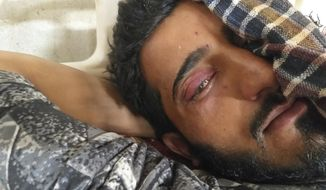 A Kashmiri man receives treatment for pellet injuries at the Shri Maharaja Hari Singh (SMHS) hospital in Srinagar, Indian controlled Kashmir, Thursday, Aug. 8, 2019. Tens of thousands of government forces in riot gear patrol Indian-controlled Kashmir. Streets lined with shuttered shops are deserted, steel barricades and razor wire cutting off neighborhoods. At the SMHS hospital, doctors told The Associated Press on Thursday that at least 50 people had come in with wounds from pellet guns and rubber bullets, the ammunition security forces often use to disperse protests. (AP Photo/Sheikh Saaliq)