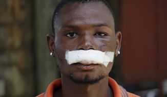 John Carey, 21-years-old, who was injured during Friday's protests, poses for photos in Port-au-Prince, Haiti, Sunday, Sept. 29, 2019. Haitian opposition leaders are calling for a nationwide push Monday to block streets, paralyze the economy and push President Jovenel Moise from power, and tens of thousands of their dedicated young supporters are expected to heed their call. (AP Photo/Edris Fortune)