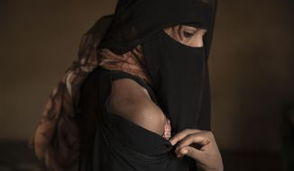 "In this July 21, 2019 photo, Ethiopian migrant Eman Idrees shows her shoulder with a wound from torture after being held and abused for eight months in a desert compound known in Arabic as a ""hosh,"" run by an Ethiopian smuggler in Ras al-Ara, Lahj, Yemen. (AP Photo/Nariman El-Mofty)"