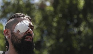 Marcelo Herrera, his eye bandaged from an injury he received during recent protests, takes part in a demonstration in support of protesters who have been injured in the eye by Chilean police, in Santiago, Chile, Thursday, Nov. 28, 2019. More than 230 anti-government protesters have suffered an eye injury since the social unrest began on Oct. 18. (AP Photo/Esteban Felix)