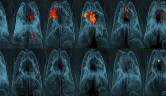This image provided by the University of Pittsburgh School of Medicine and the National Institute of Allergy and Infectious Diseases shows a collection of lung scans of 20 monkeys who were exposed to tuberculosis after receiving different forms of a TB vaccine. Monkeys in the top row received skin-deep shots, and those in the bottom row were given intravenous injections. The intravenous vaccine protected far better, as shown by TB-caused inflammation seen in red and yellow. (JoAnne Flynn, Alexander White and Pauline Maiello/Pitt; Mario Roederer/NIAID via AP)  **FILE**