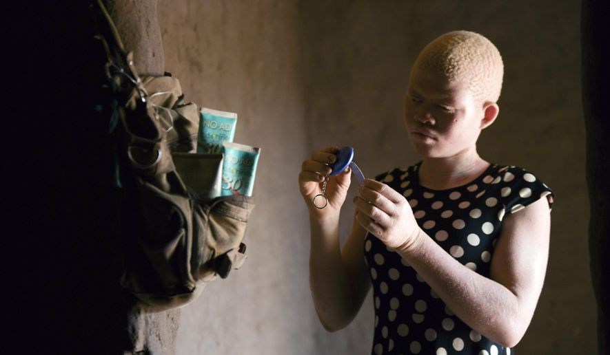 In this photo taken Sunday, Feb, 9, 2020, Catherine Amidu shows her protective alarm inside her home in Machinga, Malawi. People with albinism in several African countries live in fear of being abducted and killed in the mistaken belief that their body parts carry special powers and can be sold for thousands of dollars. 17-year-old Amidu survived an attempt on her life in 2017. (AP Photo/Thoko Chikondi)