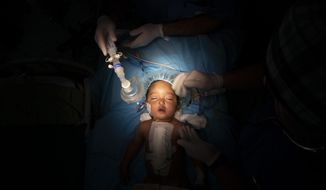 Yazan, 1, has his oxygen mask removed after his heart surgery at the Tajoura National Heart Center in Tripoli, Libya, on Feb. 27, 2020. Yazan's perilous trek from his small desert hometown culminated in a five-hour surgery. He is one of 1,000 children treated by Dr. William Novick's group since it first came to Libya after the 2011 uprising. (AP Photo/Felipe Dana)