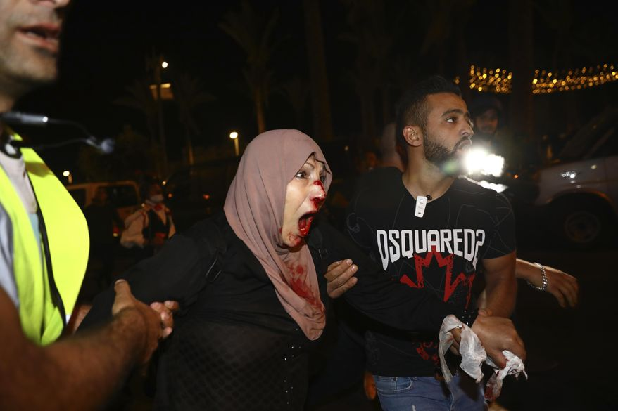 An injured Palestinian demonstrator is helped during a protest against the planned evictions of Palestinian families in the Sheikh Jarrah neighborhood of east Jerusalem, Saturday, May 8, 2021. (AP Photo/Oded Balilty)